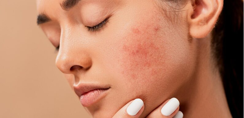 Acne Is A Very Embarrassing Problem